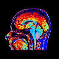 This color enhanced sagittal (from the side) T1 weighted MRI of the brain demons...