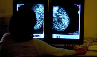 Breast screening does not reduce cancer deaths, international study warns