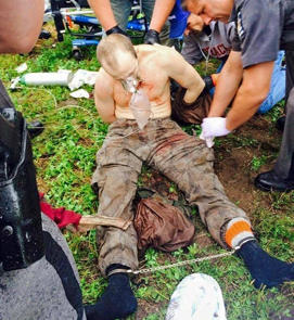 Escaped convict David Sweat is seen here after being shot and captured by police in Constable, N.Y. on June 28, 2015. WWNY