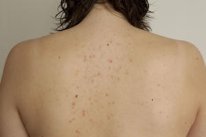 Acne on back of a young woman.