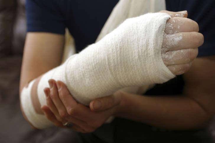 Broken arm in cast
