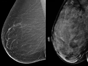 In this image, the left breast is comprised of mostly fat, while the right is a dense breast.