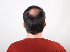 Bone strengthening medicine has exciting off-label use: treating hair loss