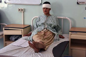 A wounded Afghan man sits on a hospital bed after explosives detonated in Kandahar on Tuesday.