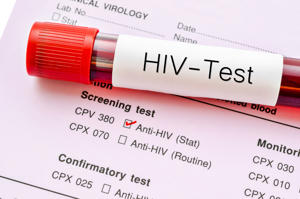 Stock photo - Sample blood collection tube with HIV test label on HIV infection screening test form.