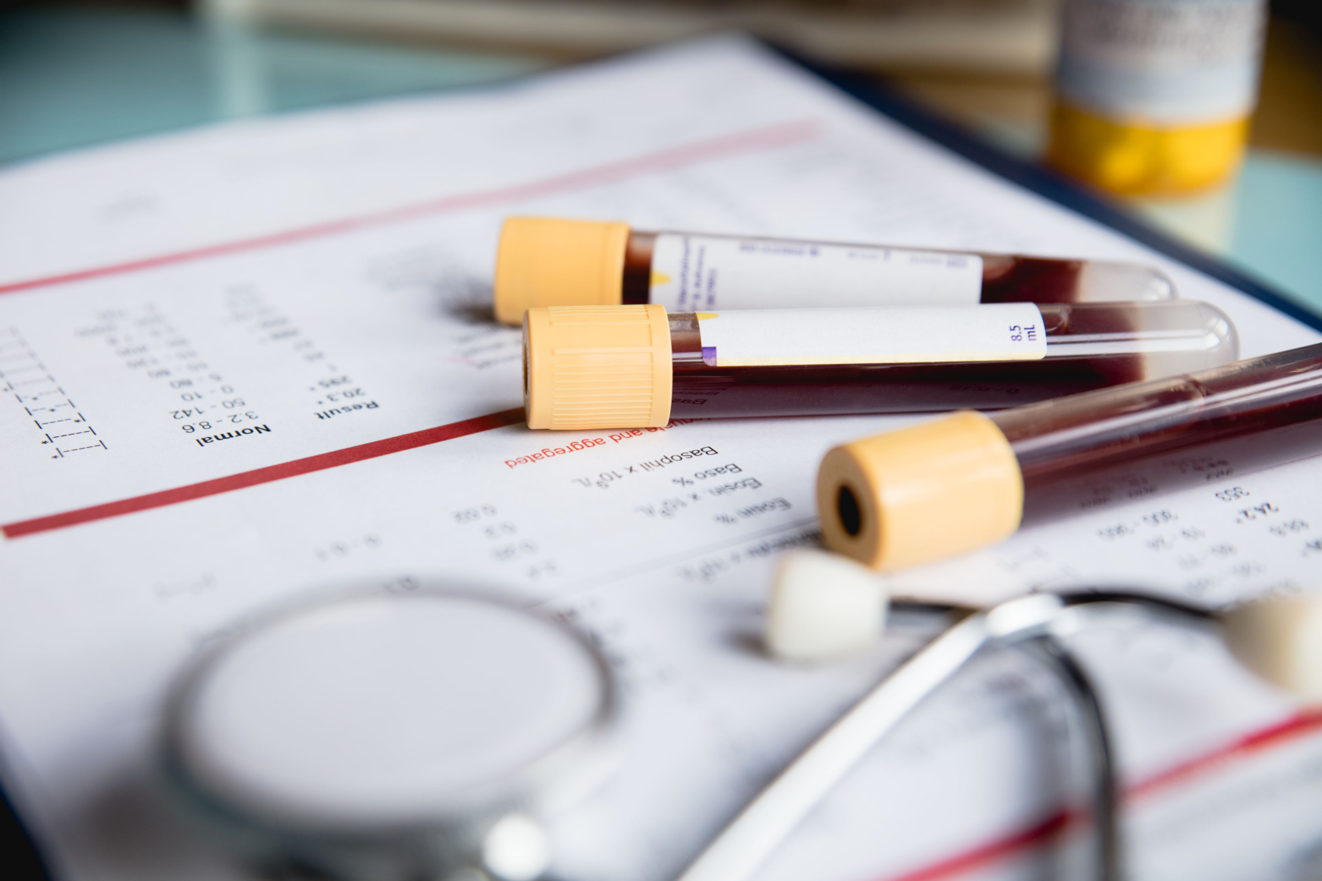 Cancer blood test catches disease 4 years before conventional methods