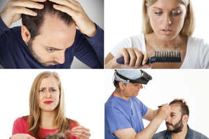 15 facts about hair loss