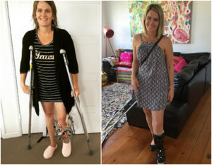 a woman standing in a room: Rosie's recovery from surgery has been slow and long. (Image supplied.)