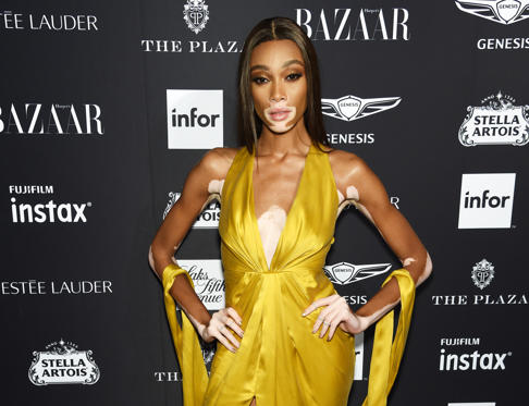 Slide 1 of 13: NEW YORK, NY - SEPTEMBER 07: Winnie Harlow attends as Harper's BAZAAR Celebrates 'ICONS By Carine Roitfeld' at the Plaza Hotel on September 7, 2018 in New York City. (Photo by Dimitrios Kambouris/Getty Images for Harper's Bazaar)