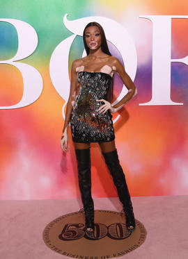 Slide 2 of 37: BROOKLYN, NY - SEPTEMBER 09:  Winnie Harlow attends the #BoF500 gala dinner during New York Fashion Week Spring/Summer 2019 at 1 Hotel Brooklyn Bridge on September 9, 2018 in Brooklyn City.  (Photo by Nicholas Hunt/Getty Images for The Business of Fashion)