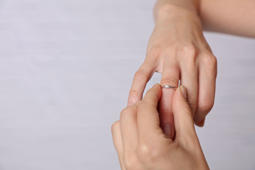 Swollen Hands. Woman trying to put on her wedding ring