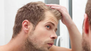 5 Tips to help prevent hair loss