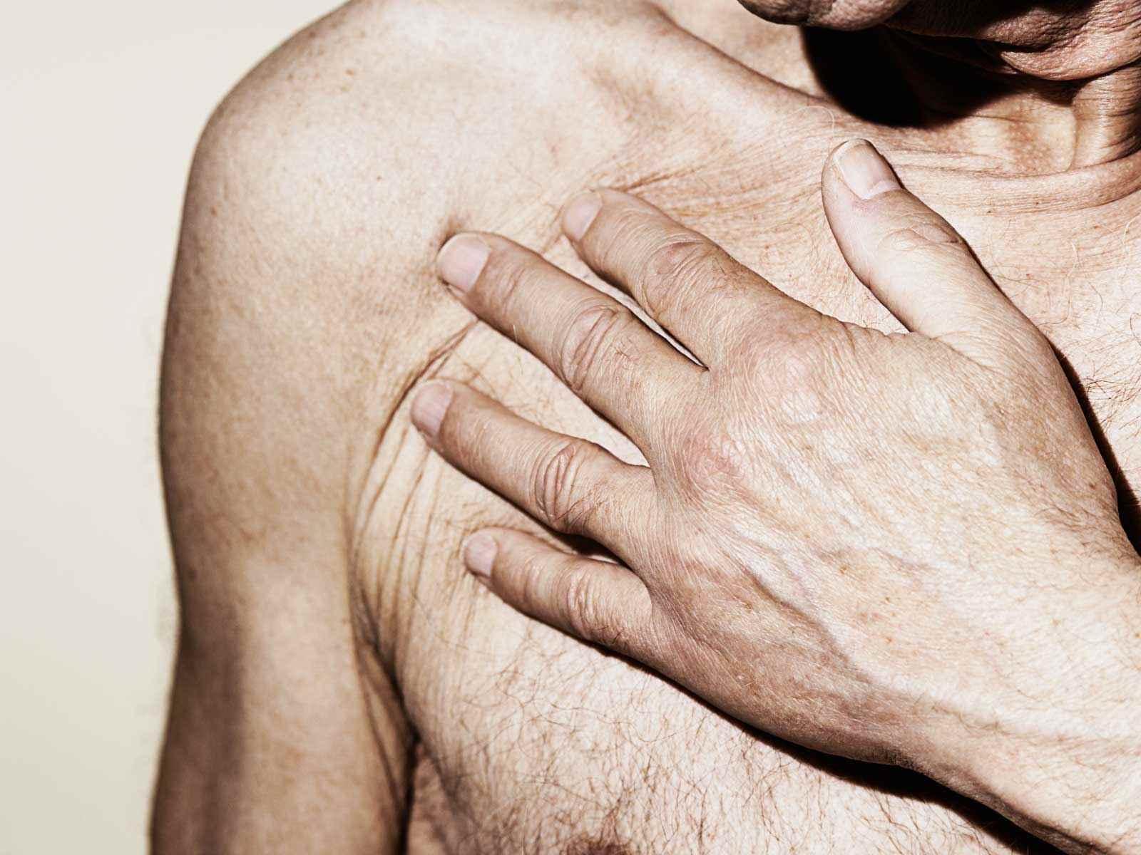 ömmande knöl i bröstet hos män