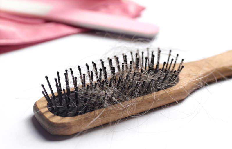 Caída del cabello - alopecia
