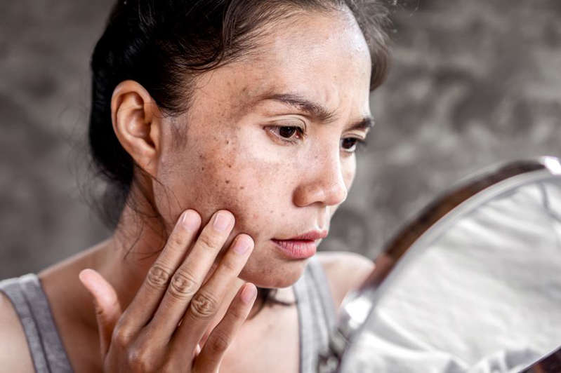 Asian woman having skin problem checking her face with dark spot, freckle from UV light in mirror