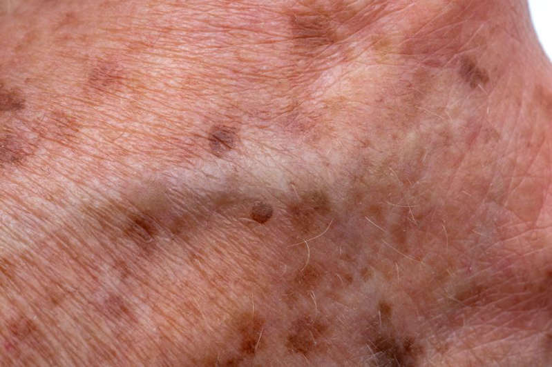 Age, or liver, spots on an elderly woman's hand.