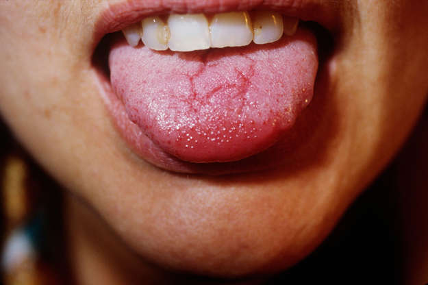 Διαφάνεια 9 από 15: Geographic Tongue Syndrome