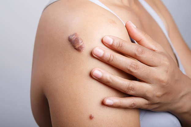 Boils, Cysts, Ingrown Hairs, and 11 Other Skin Mysteries