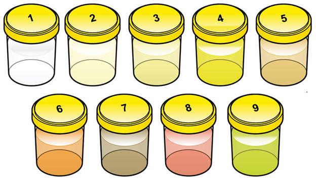 Die Bedeutung Der Urinfarbe Für Die Gesundheit