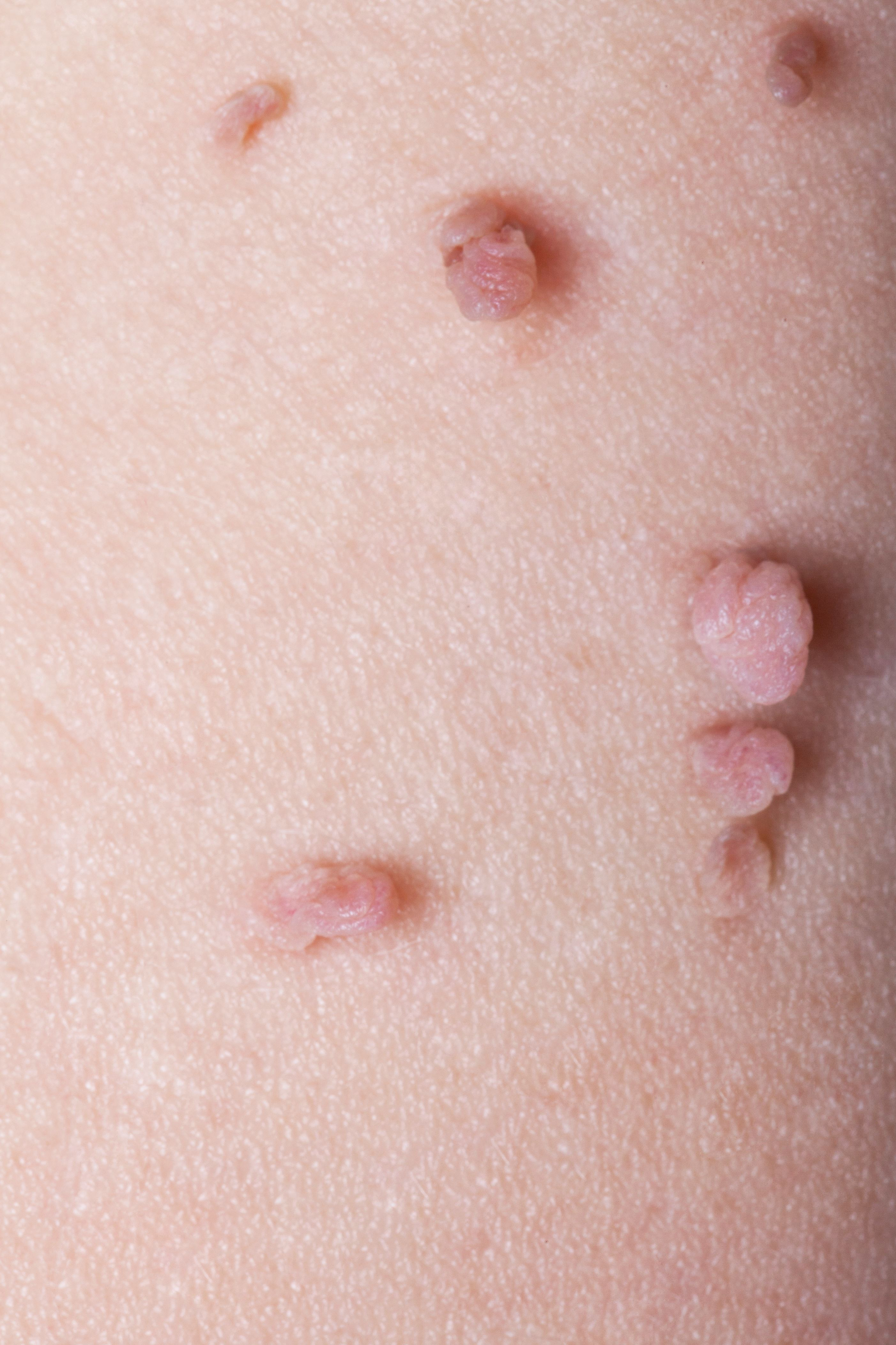 Think, self removal of anal skin tag