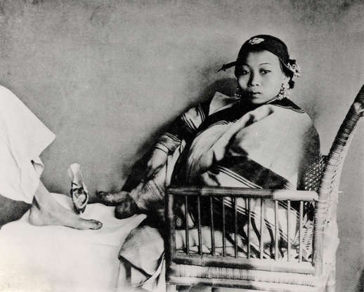 """Slide 19 of 31: This photo shows a young woman with bound feet, seated across from a person with unbound feet (whose face is cut out of the frame). For centuries, in China, the tiny, deliberately deformed feet of aristocratic women represented """"the height of female refinement,"""" according to Smithsonian magazine. """"The most desirable bride possessed a three-inch foot, known as a 'golden lotus,'"""" Amanda Foreman writes for Smithsonian. The process began when a girl was five or six years old, when her toes (except for the big toe) were broken, her arches bent and her feet bound in silk wrappings that got tighter and tighter as the process advanced; the heel and the sole of the foot were eventually crushed together. Women with bound feet were never able to walk normally again. Foot binding was banned in 1912, but continued in secret for decades; as recently as 2015, photojournalist Jo Farrell found dozens of elderly survivors of the practice while researching a book on it."""