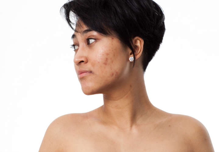 TIME TO SAY GOODBYE TO YOUR ACNE SCARS