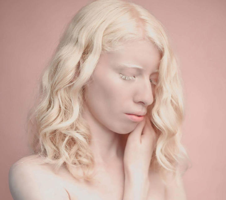 After a lifetime of being teased and misunderstood, albino model Ruby Vizcarra, 24, made it her mission to overcome the stereotypes about her skin condition.