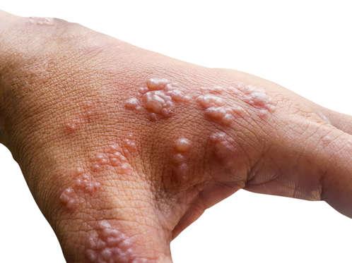Diapositiva 3 de 12: Cuando alguien enferma de varicela, algunas partículas virales se trasladan de las ampollas en la piel hacia el sistema nervioso. Ahí se instalan y quedan latentes dentro de las neuronas, que transmiten la información al cerebro. En un momento los virus se activan, se multiplican y surge la erupción del herpes-zoster o culebrilla. <a href='http://holadoctor.com/es/álbum-de-fotos/remedios-naturales-contra-la-dermatitis'>Remedios para la dermatitis</a>