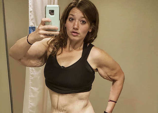 Weight Loss Influencer Lexi Reed Had 7 Lbs Of Excess Skin Removed