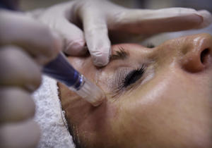 Sharon Wahrman, an aesthetician at Quinn Medical Day Spa, performs a cosmetic procedure known as microneedling at the facility. The procedure involves a penlike device that's run over the surface of the skin, making tiny pricks in the outer layers. When those layers heal, collagen is produced, making firmer skin. (Rich Sugg/Kansas City Star/TNS via Getty Images)