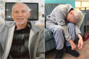 Terry Reeves on his first day in the home (left) and seven weeks later.