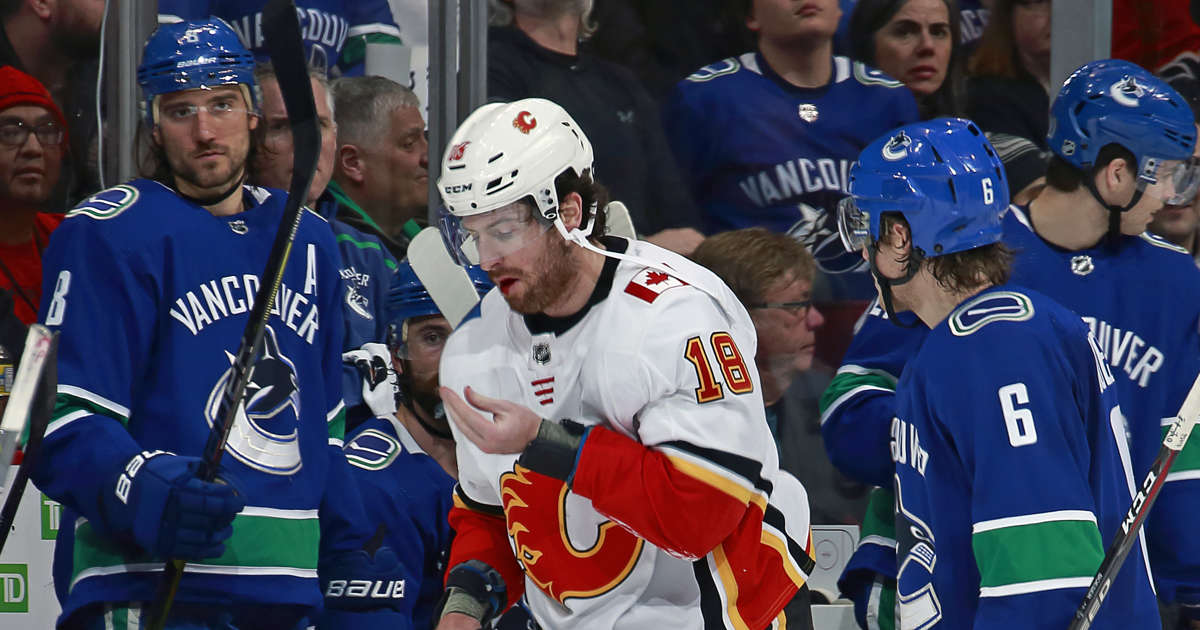Calgary Flames  James Neal has teeth fly out of mouth after he s high- sticked adf25f825