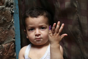 A Pakistani child shows his finger being marked after receiving the polio vaccine in Lahore, Pakistan, Wednesday, April 24, 2019. A Pakistani health official says two new polio cases have been reported in the country's northwest despite efforts against the crippling disease. (AP Photo/K.M. Chaudary)